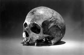 The-Skull